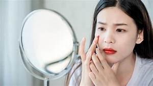 How To Remove Pimple That Won U0026 39 T Surface