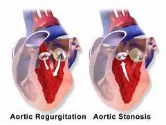 Blausen 0041 AorticVal...Aortic Regurgitation