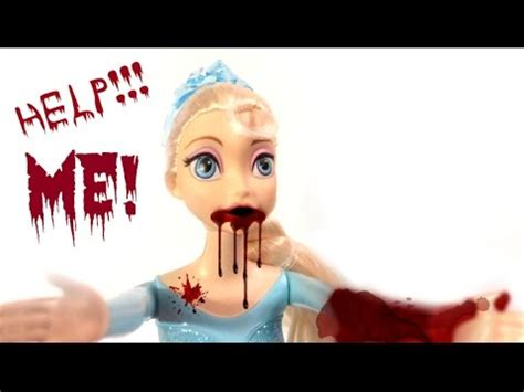frozen elsa accident freak  blood