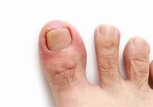 How To Treat Ingrown Toenail Without Surgery