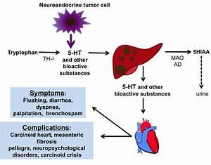 Summary Of The Pathophysiology Of Carcinoid Syndrome