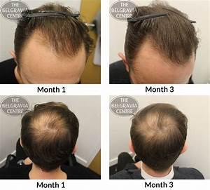 Poyzunivy Style  Side Effects Of Minoxidil Hair Treatment
