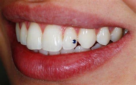 perdere sangue dal sedere denti nei sogni cosa significa sognare i denti o sognare