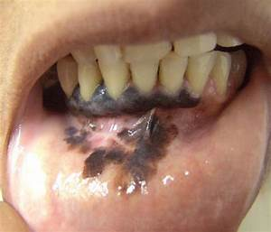 Primary Oral Mucosal Melanoma Affecting The Lower Gingival