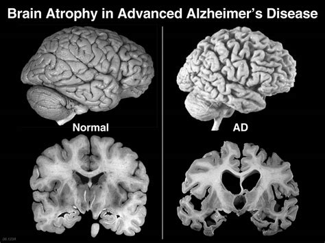 It is one of the most common forms of dementia, a group of symptoms that lead to a first identified in 1907 by the german physician alois alzheimer, the illness afflicts about 5 million americans. Alzheimer's: The Final Frontier?: Who are we in the end?