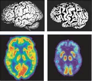 MRI Brain Scan Dementia