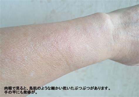 日光アレルギー 症状