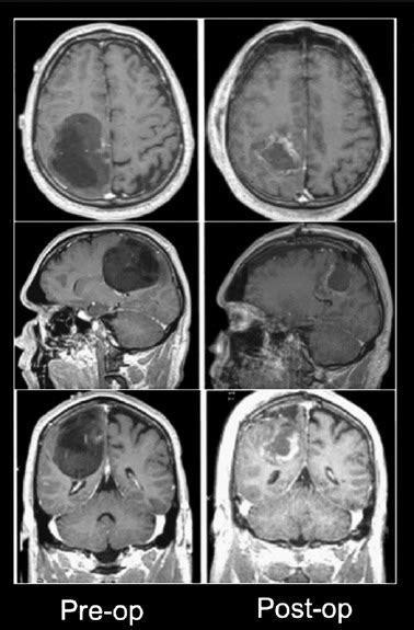 awake craniotomy  craniotomy  general anesthesia