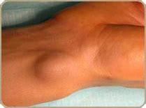 kyste arthro synovial institut fran 231 ais de chirurgie de la