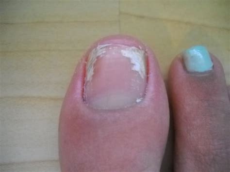 White Spots On Nail Beds by When You These White Spots Or Lines On Your Nails It