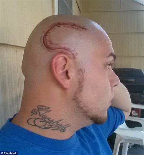 fathers tattoo matches  huge scar  young son bears