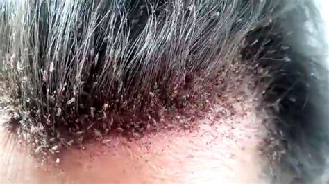 This Video Of A Man's Disgusting Head Lice Infestation