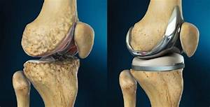 What Is Total Knee Replacement