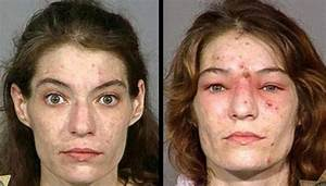 Crystal Meth Effects on Skin {Gruesome Pics Inside}
