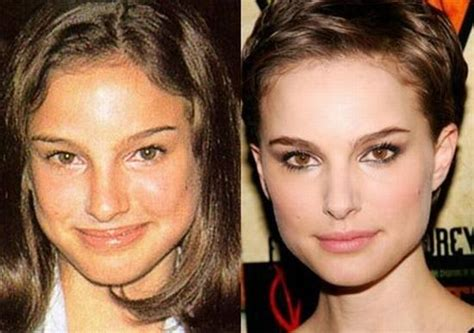 Stars Before And After Plastic Surgery (47 Pics. What Is The Best Long Term Care Insurance. 2015 Kia Sorento Release Date. Online Financial Courses Digital Tv Companies. Sullivan University Mba Web Design Developers. How Do You Get Credit Score App Video Call. How To Install Slate Roof Colleges In Spokane. Rehabilitation Centers In Illinois. Top 100 Voip Providers Online College Catalog