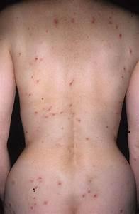 Medical Pictures Info – Dermatitis Herpetiformis
