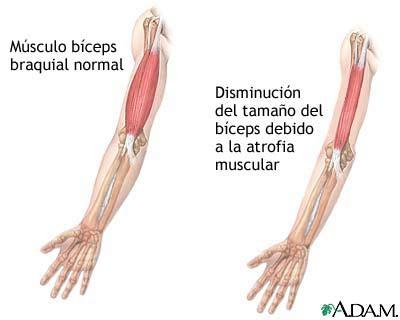atrofia muscular por falta de uso ou neurologica saude cultura mix