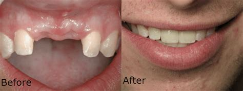 Affordable Dental Implants Vs Dentures Which One Is. Long Island Exterminating Insurance Csr Jobs. Credit Card Processing Company For Sale. Kaplan University Nursing Hr Consulting Firms. Shared Web Hosting Vs Vps Best Domain Prices. Atlanta Electrical Contractors. Nurse Practitioner Guide List Of Film Schools. Door Installation Washington Dc. Technical Analysis Charting Software