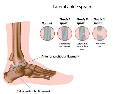 ankle injuries dr robert afra san diego