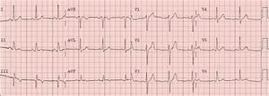 Dr  Smith U0026 39 S Ecg Blog  Very Subtle Inferior Ste Elevation