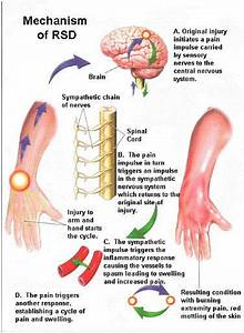 Crps Diagrams Depict Different Areas Of The Body Because It Can Begin In Any Limb  It Can Affect