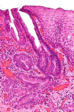 esophageal adenocarcinoma libre pathology