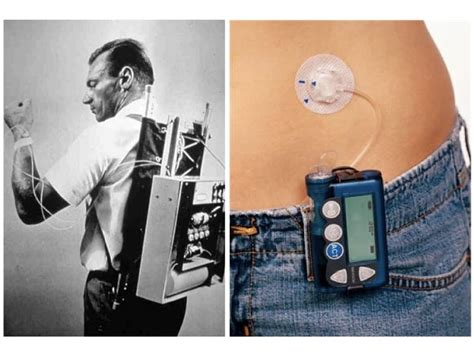under pump system the evolution of the insulin pump