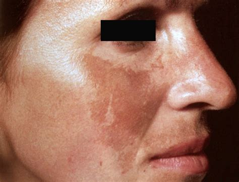 melasma  treatment affects skin  color society