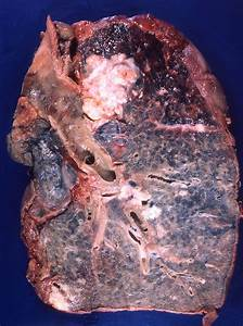 Squamous-cell Carcinoma Of The Lung