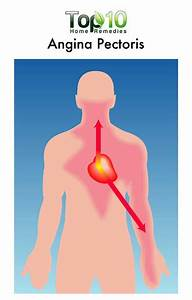 Home Remedies For Chest Pain  Angina