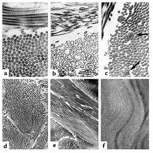 Collagen Synthesis What Eds Looks Like Under A Microscope Elhers Danlos