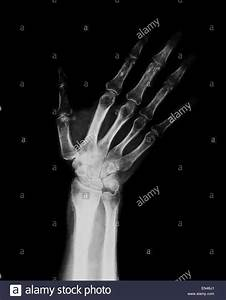 xray through adult hand and wrist with radius and ulna ...