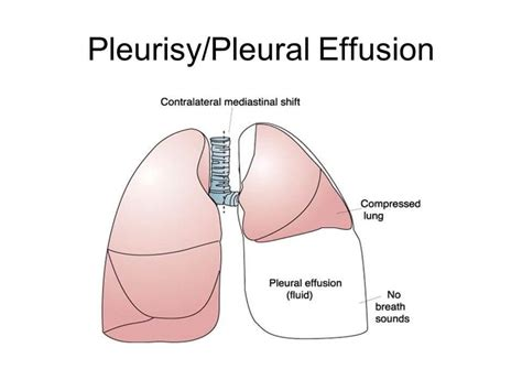 Pleurisy  Earth's Lab  The Easy Way To Learn. Courage Signs Of Stroke. Farm Road Signs Of Stroke. Concept Infographic Signs. Executive Signs Of Stroke. Half Happy Half Signs Of Stroke. Call Signs Of Stroke. July 13 Signs Of Stroke. Gottron Signs