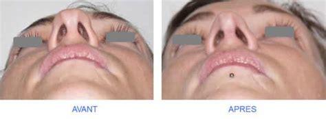rhinoplastie de la pointe du nez