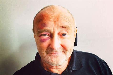 Phil Collins Postpones Comeback Tour After Injuring