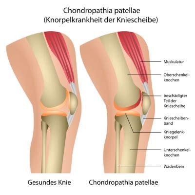 chondropathia patellae ursachen beschwerden therapie
