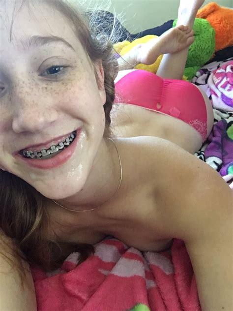 Cum On Teen With Braces Fidelio666