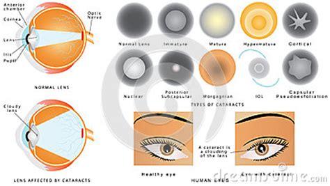 cataract stock vector image