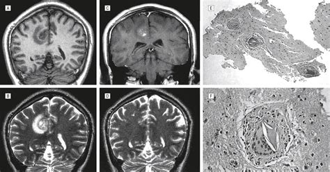 Seizures And Cerebral Schistosomiasis Epilepsy And