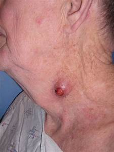 Keratin Granuloma  Inflamed Or Ruptured Cyst  Inflamed Or