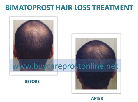 Bimatoprost Hair Loss Before And After  Order Careprost