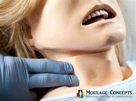 moulage   month jugular vein distention secondary