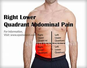 What Can Cause Right Lower Quadrant Abdominal Pain  U0026 How
