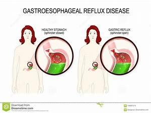Gastroesophageal Cartoons  Illustrations  U0026 Vector Stock