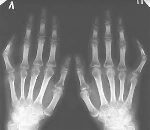 Анти артрит нано мазь отзывы
