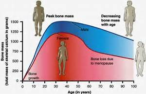 ... march of time left Carol's doctors gasping at how her bones looked  Osteoporosis Bone Health