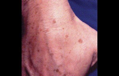 hands  younger dermatologist