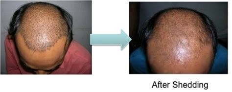 Minoxidil Shedding Phase Pictures related keywords suggestions for minoxidil shedding
