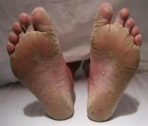 Как лечить грибок на ногах трещины