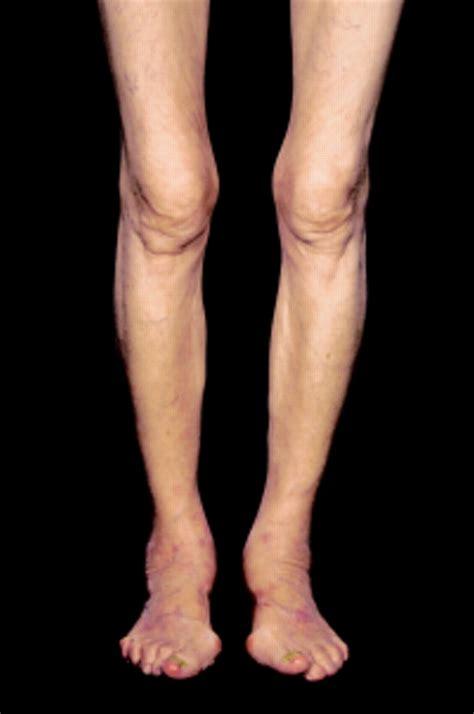 oligoarthritis   elderly woman  diarrhoea